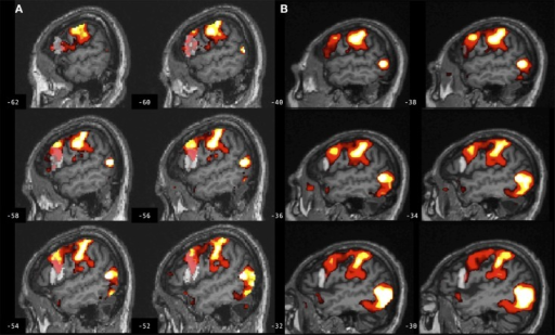 Brain activation associated with right hand action observation in the left hemisphere of a participant with stroke involving the internal capsule, as evaluated by: (A) a commonly used automated approach to ROI analysis, normalized and overlaid onto the MNI brain image; and (B) a manual approach to ROI analysis, overlaid onto the participant's non-normalized brain image. ROI masks for left BA 44 are displayed in gray. In this example, peak activation is localized to the left ventral premotor cortex according to the manual approach in (B), whereas due in part to larger ROI volume and spatial smoothing, the activation is localized to the left BA 44 according to the automated approach in (A). For display, activation maps are shown at T = 1.67–10 corresponding to p < 0.05 uncorrected.