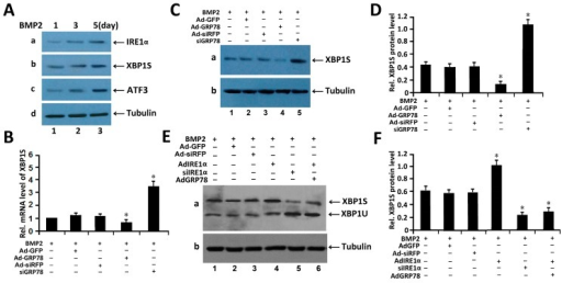 GRP78 decreases the expression of the XBP1S in BMP2-induced chondrogenesis. (A) Western blotting assay of the expression of ER stress associated molecules in C3H10T1/2 cells induced by BMP2 (300 ng/mL) for different times (1, 3, 5 days). Cell lysates prepared from micromass culture of C3H10T1/2 cells induced by BMP2, as indicated, were subjected to SDS-PAGE and detected with anti-BiP, anti-XBP1S, anti-IRE1α and anti-tubulin (serving as an internal control), respectively. Protein levels of IRE1α, XBP1S, ATF3 and tubulin (internal control) are shown; (B) Ad-GRP78 reduces, while siGRP78 increases, the level of XBP1S mRNA. C3H10T1/2 cells infected with Ad-GRP78 and control Ad-GFP, siGRP78 and control siRFP, were cultured for 48 h and endogenous XBP1S gene expression was determined by real-time PCR. The normalized values were then calibrated against the control value. The units are arbitrary, and the left bar indicates a relative level of XBP1S mRNA of 1; * p < 0.05; (C) Ad-GRP78 reduces, while siGRP78 increases, the level of XBP1S protein level in C3H10T1/2 cells induced by BMP2. C3H10T1/2 cells infected with Ad-GRP78 and control Ad-GFP, siGRP78 and control siRFP, were cultured for 48 h, respectively, and the endogenous XBP1S protein level was determined by Western blotting. siGRP78, an siRNA adenovirus targeting GRP78. Tubulin protein served as an internal control; (D) Semi-quantification of relative levels of XBP1S in micromass culture of C3H10T1/2 cells induced by BMP2. Levels were normalized against those of tubulin by MJ Opticon Monitor Analysis Software (Bio-Rad), data were expressed as means ± S.D. (n = 3). Every treatment group was compared with control groups respectively, * p < 0.05; (E) Ad-GRP78 decreases the level of XBP1S protein spliced by IRE1α in chondrocytes induced by BMP2. Micromass cultures of C3H10T1/2 cells were treated with 300 ng/mL BMP2, then C3H10T1/2 cells were infected with either Ad-GFP (serving as a control), siRFP (serving as a control), or Ad-IRE1α, siIRE1α, or Ad-IRE1α + Ad-GRP78, as indicated. Five or six days later, the cell lysates were used to detect the protein level of XBP1S by Western blotting. siIRE1α, an siRNA adenoviruse targeting IRE1α. Tubulin protein served as an internal control; (F) Semi-quantification of relative levels of XBP1S in micromass culture of C3H10T1/2 cells induced by BMP2. Levels were normalized against those of Tubulin by MJ Opticon Monitor Analysis Software (Bio-Rad), data were expressed as means ± S.D. (n = 3). Every treatment group was compared with control groups respectively, * p < 0.05. Error bars, S.D.