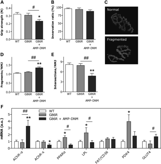 Effect of inhibition of GCS enzymatic activity on SOD1(G86R) mice. (A) Hind limb muscle grip strength in WT and SOD1(G86R) mice in the absence or presence of AMP-DNM for 10 days. *P < 0.05 versus WT, #P < 0.05 versus untreated SOD1(G86R), n = 5–6. (B) Proportion of properly innervated neuromuscular junctions after 10 days of AMP-DNM treatment, as determined by co-labeling with anti-synaptophysin antibody and rhodamine-conjugated α-bungarotoxin. A total of 100–150 neuromuscular junctions per animal were counted, n = 4–6. Examples of normal and fragmented postsynaptic apparatus are shown in C. Number of separate postsynaptic gutters (D) and gutter intersections (E) per neuromuscular junction in mice as in A. A total of 20–25 neuromuscular junctions per animal were analyzed. **P < 0.01 versus WT, ##P < 0.01 versus untreated SOD1(G86R), n = 4. (F) Relative mRNA levels of AChR-α, AChR-ε, PPARα, LPL, FAT/CD36 PDK4 and GLUT4 in muscle of mice as in A. *P < 0.05, **P < 0.01 versus WT, #P < 0.05, ##P < 0.01 versus untreated SOD1(G86R), n = 4–6.