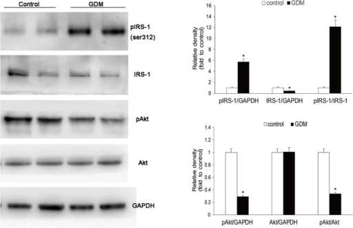Insulin signaling pathway in placentae of GDM.Western blotting for the phosphorylation of IRS-1 (Ser312) and phosphorylation of Akt in maternal surface of placentae. Representative western blot images are shown. Compared with normal pregnancy (n = 36), the GDM placentae (n = 33) showed increased IRS-1 phosphorylation (Ser312), decreased IRS-1 and Akt phosphorylation.