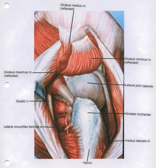 gluteus maximus muscle; sciatic nerve; lateral circumflex femoral artery; femur; gluteus medius muscle; gluteus minimus muscle; lateral joint capsule; greater trochanter; vastus lateralis muscle