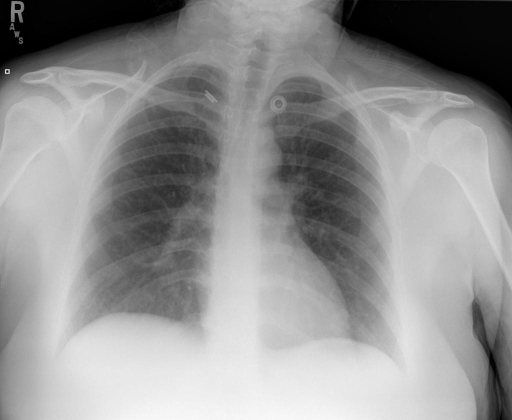 Portable radiograph of the chest, single view, Portable AP view.