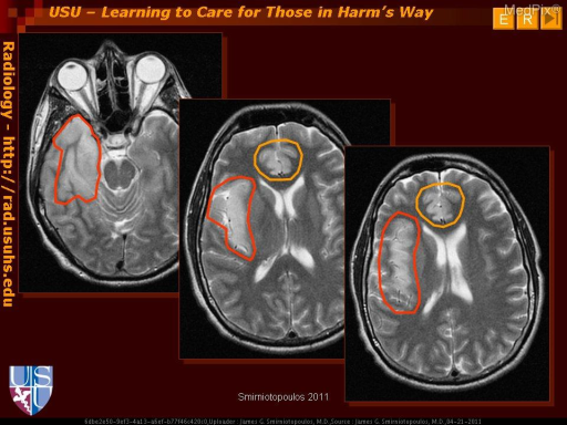 Companion Case - Herpes simplex encephalitis usually affects the cortical gray matter, especially early in the disease.  Temporal lobe  and insular cortex are usually first (red outlines)- with abnormal signal intensity (bright on FLAIR and T2W), cortical thickening (sulcal effacement), and variable enhancement.  Similar changes occur in the cingulate gyrus (orange outlines) in up to 2/3 of patients.The inferior frontal gyri may be affected next.  Since vascular/ischemic lesions also affect the cortex, a non-vascular pattern of involvement (e.g. bilateral insula or insula plus cingulate) can be very helpful.  Involvement of the basal ganglia gray matter is uncommon and/or late in the course of HSV encephalitis.