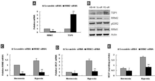 Knockdown of RRM2 increased TSP-1 and decreased VEGF expression in KB cells. (A) q-RT-PCR analysis showed that RRM2 mRNA was decreased by ~80%, and TSP-1 mRNA was increased by ~5 folds in KB cells at 48 h post-transfection with RRM2 siRNA. (B) Western blot analysis showed that TSP-1 protein was significantly increased by ~2.6-fold (KB-W: KB cell, Sc-siR: scramble siRNA transfected KB, R2-siR: RRM2 siRNA transfected KB). (C) q-RT-PCR analysis confirmed RRM2 mRNA was significantly decreased in KB cells at 48 h post-transfection under both normoxia and hypoxia. (D) q-RT-PCR analysis showed VEGF mRNA in KB cells was decreased after RRM2 knockdown under both normoxia and hypoxia. (E) VEGF in condition medium of KB was significantly decreased after RRM2 knockdown under both normoxia and hypoxia. Data was presented as the mean ± SD of 2–3 independent experiments, *p < 0.05, **p < 0.01, compared with scramble siRNA transfected.