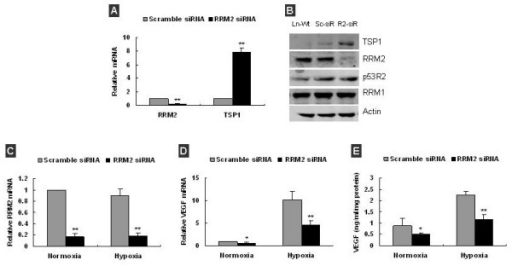 Knockdown of RRM2 increased TSP-1 and decreased VEGF expression in LNCaP Cells. (A) q-RT-PCR analysis confirmed that RRM2 mRNA decreased by ~80%, and TSP-1 mRNA increased by ~8 folds in LNCaP cells at 48 h post-transfection with RRM2 siRNA. (B) Western blot analysis showed that TSP-1 protein was significantly increased by ~3.4-fold (Ln-Wt: LNCaP cell, Sc-siR: scramble siRNA transfected LNCaP, R2-siR: RRM2 siRNA transfected LNCaP). (C) q-RT-PCR analysis confirmed that RRM2 mRNA was significantly decreased in LNCaP at 48 h post-transfection under both normoxia and hypoxia. (D) q-RT-PCR analysis showed VEGF mRNA in LNCaP cells was decreased after RRM2 knockdown under both normoxia and hypoxia. (E) VEGF in condition medium of LNCaP was significantly decreased after RRM2 knockdown under both normoxia and hypoxia. Data was presented as the mean ± SD of 2–3 independent experiments, *p < 0.05, **p < 0.01, compared with scramble siRNA transefected.