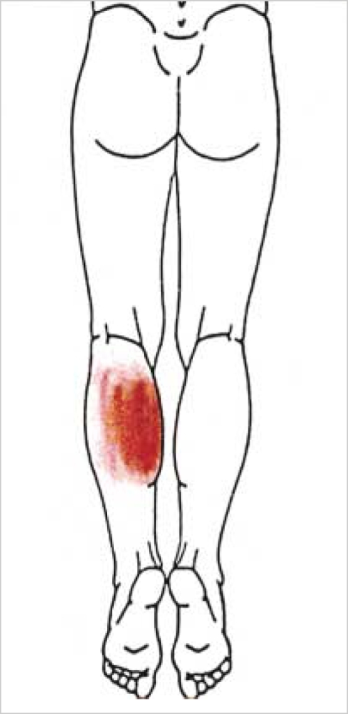 Figure 1:Intramuscular Hemangioma Mimicking Myofascial ... Soleus Muscle Pain Symptoms