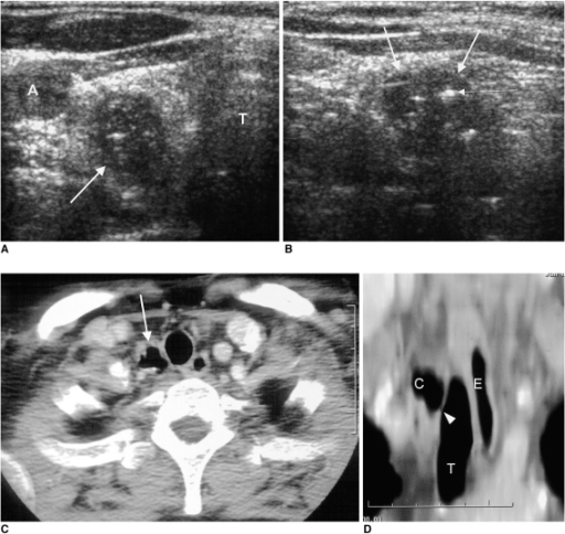 A 43-year-old woman who underwent a routine medical checkup.A, B. Transverse (A) and longitudinal (B) sonograms of the neck depict a 2.9 × 1.4 - cm hypoechoic mass (thick arrows) with multiple hyperechoic foci (thin arrow) at the inferoposterior aspect of the right lobe of the thyroid gland.C. Neck CT shows an air-filled cyst (arrow) with an irregular wall to the right of the trachea.D. Reformatted coronal CT image depicts slit-like communication (arrowhead) between the trachea and the air cyst.(A=right common carotid artery, C=paratracheal air cyst, E=esophagus, T=trachea)