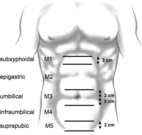 To classify midline incisional hernias between the two lateral margins of the rectus muscle sheaths, five zones were defined