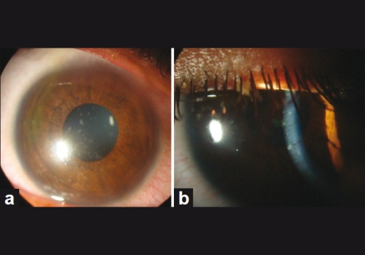 (a) Slit-lamp photograph of the cornea in diffuse illumination showing coin-shaped discrete and coalesced lesions with central clearing in some lesions. (b) Slit-lamp photograph in slit illumination showing discrete and coalesced coin-shaped epithelial lesions