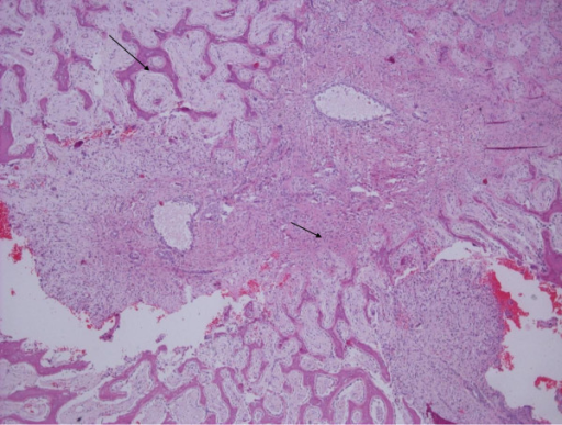 Spindle cell proliferation (small arrow) and reactive woven bone formation (large arrow) rimmed by osteoblasts. There were also small aneurysmal cystic spaces. Hematoxylin and eosin stain; original magnification, ×40.