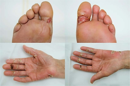 Erythema Nodosum in Adults: Condition, Treatments, and ...