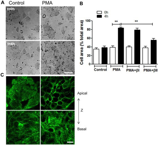 PKCβII mediates PMA induced epithelial cell spreading.(A,B) Subconfluent IECs monolayers (∼40% confluency) were allowed to spread on 13-mm collagen-coated coverslips in the absence (left panels) or presence (right panels) of PMA activation (200nM, 4 h), with the addition of PKCβII or PKCβI inhibitors as indicated. Cell area per field of view was measured before (t = 0 h, upper panels) and after treatment (t = 4 h, bottom panels). (A) Representative images demonstrating enhanced IEC spreading after PMA treatment. The bar is 50 µm. (B) Quantification of IEC spreading in the presence or absence of PKCβII (PMA+βII) or PKCβI (PMA+βI) inhibitors. Data presented as percent cell area/total area of the field of view. PMA induced cell spreading was significantly attenuated after inhibition of PKCβII. **significantly different (p<0.01). (C) Spreading IECs stimulated with PMA were fixed and stained for F-actin at t = 0 (left panels) and t = 4 h (right panels). Representative confocal microscopy images show most apical (upper panels) and most basal (bottom panels) distribution of F-actin. A dramatic reorganization of F-actin including loss of perijunctional actomyosin belt at the apical side, and redistribution of actin towards cell borders, as well as loss of stress fibers at the cell basal side in response to PMA treatment was observed. The bar is 20 µm.
