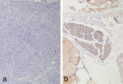 PTHimmunostaining. a: Weak PTH-positive cells were seen in the normal parathyroid gland ofCase2 (original magnification, ×20). b: PTH-negative staining was observed in theneoplastic parathyroid gland of Case 2 (original magnification,×20).