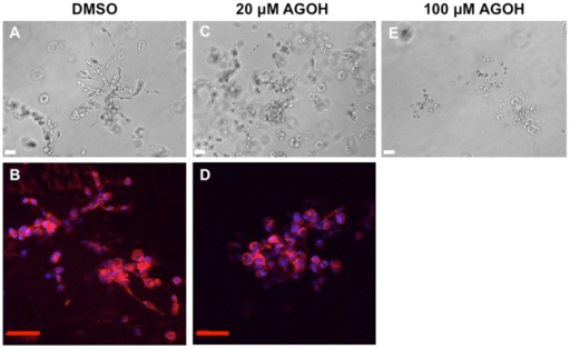 AGOH inhibits 3D invasive growth of MDA-MB-231 cells.MDA-MB-231 cells were seeded in Matrigel and treated with AGOH at the indicated concentration. After culturing for 8 days, phase contrast images were taken from randomly chosen fields (A, C, E) or Matrigel containing colonies were fixed and immunostained for F-actin (phalloidin, red) and nuclei (DAPI, blue) (B, D). The representative images from three separate experiments are shown. Scale bars represent 50 µm.