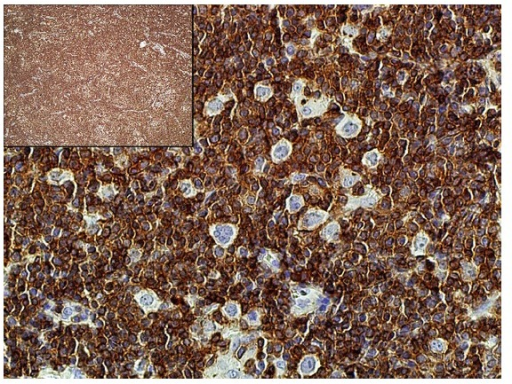 Background cells (CD3 immunostain, 400x; inlet, 40x). CD3-positive cells comprise the predominant background population.