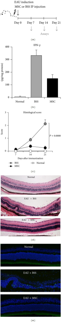 Histological findings of the eye. (a) EAU was induced in mice on day 0, and either hMSCs (1 × 106 cells in 100 μL BSS) or BSS (100 μL) were intraperitoneally (IP) injected immediately after EAU induction. On days 7, 14, and 21, the eyes or DLNs were collected for assays. (b) ELISA showed that IFN-γ in the eye was markedly increased in the eyeball on day 14 and significantly reduced by hMSCs. Data are presented in mean + SEM. n = 5 in each group. (c) Time course of histological disease scores demonstrated that the retinal pathology gradually developed with a peak at day 21. Histological scores were significantly lower in hMSCs-treated mice at all time-points, suggesting that hMSCs prevented the disease development. Data are presented in mean + SEM. n = 5 in each group. (d) Hematoxylin-eosin staining of the eye on day 21 showed severe disruption of the retinal structure including the photoreceptor layer with inflammatory cell infiltration in the vitreous cavity and in the retina of EAU mice. In contrast, the retinal structure was well-reserved, and few inflammatory cells were observed in EAU mice treated with hMSCs. (e) TUENL staining showed a number of dead cells in the disrupted photoreceptor layer of EAU mice. In contrast, no TUENL-positive cells were found in the retina of mice treated with hMSCs.