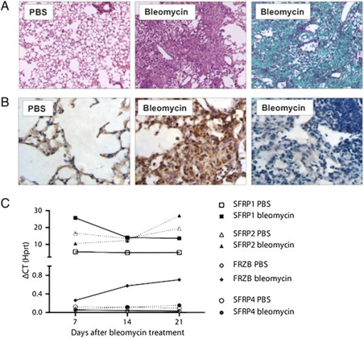 WNT and SFRP dynamics in bleomycin-induced lung fibrosis. (A) Representative images lungs from WT mice, 4 weeks after PBS or bleomycin instillation. (Hematoxylin-Eosin and Masson Trichrome staining) (B) β–catenin or goat IgG (negative control, 3rd panel) immunohistochemistry, 4 weeks after intratracheal PBS or bleomycin instillation in WT mice. (C) Total lung gene expression level of Sfrp1, Sfrp2, Frzb and Sfrp4 following bleomycin instillation (n = 4, except for bleomycin group at day 21 n = 2; data presented as mean and SEM of ΔCT values normalized to Hprt expression).