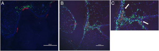 Distribution of Red-labeled siRNA in the trachea after allergen exposure. Texas Red-labeled siRNA was administrated intratracheally to sensitized mice. The mice were challenged with OVA 1 hour later. One hour (A) or 12 hours (B) after allergen exposure, lungs are extracted and stained with DAPI and FITC-conjugated anti-CD11c mAb. Red-labeled siRNA is located in green CD11c-positive cells (arrow).