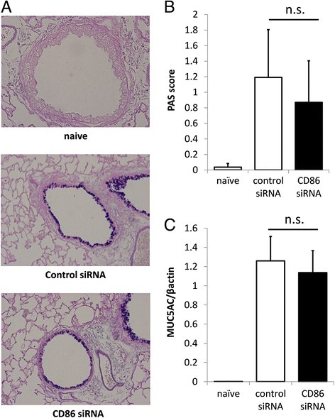 Lack of effect of treatment with CD86 siRNA on mucus production in OVA-challenged mice. (A) Lungs were obtained 36 hours after the last OVA challenge and inflated in formalin. Sections were stained with AB/PAS to identify mucus-containing cells. Representative sections from naïve, control siRNA, and CD86 siRNA-treated mice are shown. (B) Semi-quantitative analysis of the abundance of PAS-positive cells. The numeric scores for the abundance of PAS-positive, mucus-containing cells in each airway were determined to be as follows: 0, <5% PAS-positive cells; 1, 5–25%; 2, 25–50%; 3, 50–75%; 4, >75%. (C) MUC5AC expression in mouse whole lung was analyzed by real-time PCR. The relative levels of the MUC5AC transcripts were presented as fold increase over baseline values. β-actin was taken as a house-keeping gene. All data mean ± SEM of 6–10 mice per group. n.s. means statistically not significant.
