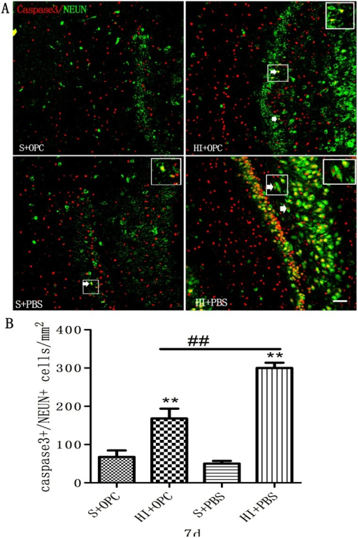 OPC transplantation inhibits apoptosis in the DG following HI 7 days after transplantation.(A) Apoptotic neurons (white arrows) were visualized by double immunolabeling with antibodies against caspase-3 (red) and NeuN (green). (B) The number of caspase-3+/NeuN+ apoptotic cells increased in HI animals (HI+PBS) compared to sham-operated controls; injection of OPCs (HI+OPC) mitigated this effect. Data are expressed as mean ± SD. *P < 0.05, **P < 0.01, HI group vs. sham controls; #P < 0.05, ##P < 0.01 between HI+PBS and HI+OPC groups; n = 6–8 animals per group. Scale bar = 50 μm.