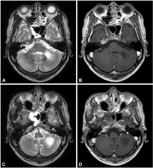 T2-weighted (A and C) and gadolinium-enhanced T1-weighted (B and D) MRIs show a round cystic lesion located in the left inferior cerebellum. The lesion is bordered by the flocculus anterolaterally, paraflocculus (tonsil) medially, and inferior and middle cerebellar peduncles anteromedially.