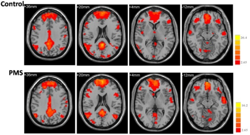 The functional connectivity map of the DMN (default mode network).Axial images show the network for the control (upper panel) and PMS (lower panel) groups. The statistical map was derived from a one-sample t-test of DMN components. The bar at the right shows the T-values. Images are in radiologic format with the left side of the image corresponding to the right side of the subject's brain.