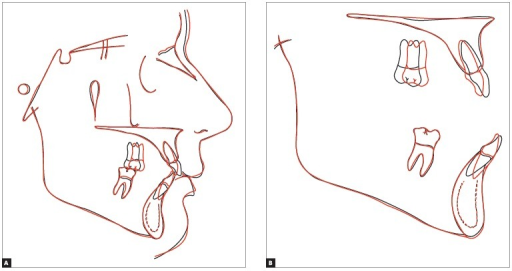 - Total (A) and partial (B) cephalometric superimpositions of initial(black) and final (red) tracings.