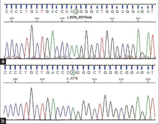 (a) DNA sequencing of exon 29 of the tuberous sclerosis complex (TSC2) gene finds a c. 3576_3577insA mutation in three patients. (b) Sequence of exon 29 of the TSC2 gene in normal subjects.
