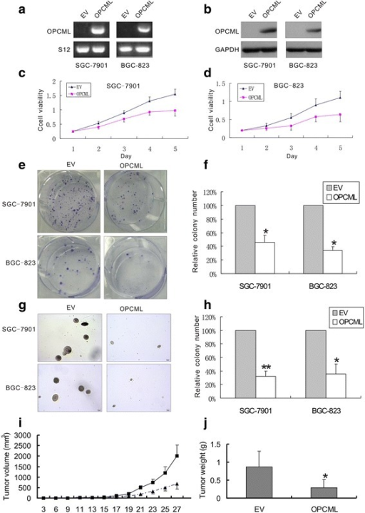 OPCML suppressed the growth of gastric cancer cells. a and b OPCML mRNA and protein expression in SGC-7901 and BGC-823 cells after transfected with OPCML plasmid. c and d effect of ectopic expression of OPCML on cell viability of SGC-7901(P < 0.01) and BGC-823 (P < 0.01) cells. e and f effect of ectopic OPCML expression on anchorage-dependent colony formation of SGC-7901 and BGC-823 cells. g and h effect of ectopic OPCML expression on anchorage-independent colony formation of SGC-7901 and BGC-823 cells. i and j effect of ectopic OPCML expression on the growth of SGC-7901 cells in vivo. Data are mean ± SE. of 5 independent experiments. * P < 0.001, ** P < 0.0001, versus empty vector. EV, empty vector; OPCML, OPCML-pcDNA 3.1