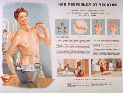 <p>Multicolor poster with blue and black lettering.  All lettering in Cyrillic script.  Title at top of poster.  Title appears to address how to thoroughly clear up scabies.  Visual images are illustrations.  Dominant illustration features a young man drying or scrubbing his back while standing near a washtub.  Smaller illustrations depict the scabies mite, how it burrows into the skin, and stages of the eventual rash.  Two more illustrations near bottom of poster show women ironing and hanging bedding outdoors in the sun.  Text near illustrations may address preventing the spread of the &quot;infectious itch.&quot;  Publisher information at bottom of poster.</p>
