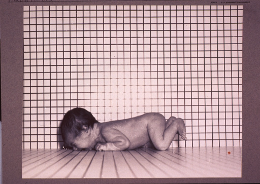 <p>Infant lying on a table, full-length, face down, facing left, against a grid backdrop intended to indicate size.</p>