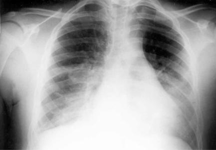 Varjostuma Keuhkoissa