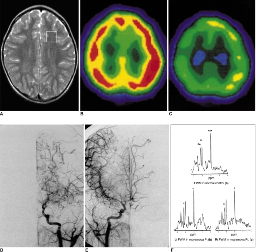MRI, basal and diamox stress SPECT, cerebral angiography and 1H-MR spectra obtained in patient No. 5.A. T2-weighted axial image shows a voxel location for 1H-MRS and no abnormal signal intensity in the brain.B. Basal SPECT (axial view) discloses normal uptake in both hemispheres.C. Diamox stress SPECT (axial view) reveals decreased uptake in both hemispheres.D. Arterial-phase angiogram of the left common carotid artery (frontal view) shows marked stenosis of the distal internal carotid and anterior and middle cerebral arteries, with tortuous and dilated medial and lateral lenticulostriate vessels (Suzuki stage II).E. Arterial-phase angiogram of the right common carotid artery (frontal view) demonstrates findings similar to those of the left side (Suzuki stage II).F. Representative 1H-MR spectra of frontal white matter (both sides) show lower NAA/Cr [Lt(b): 1.21, Rt(c): 1.34], Cho/Cr [Lt(b): 0.71, Rt (c): 0.77] ratios than in an age-matched control (a).
