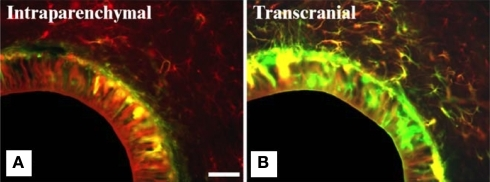 Intensity of glial scarring in rats based on implantation procedure. (A,B) show co-expression analysis of GFAP (red) and vimentin (green) of implanted hollow fiber membranes (HFMs) in rats via two implantation schemes. Vimentin is expressed by astrocytes, microglia and fibroblasts derived from the meninges and other connective tissues. (A) Intraparenchymal implant (where the entire implant is surrounded by brain tissue) show less vimentin immunoreactivity along with GFAP reactivity. (B) Transcranial HFMs show thick layers of GFAP+/vimentin+ cells suggesting meningeal fibroblast infiltration due to skull-tethering of HFMs in such implants. The same study also showed higher ED1 reactivity in transcranial implants compared to intraparenchymal implants highlighting the exacerbated gliosis in the former implantation scheme. Scale = 100 μm. Reprinted from Kim et al. (2004). Copyright 2003, with permission from Elsevier.
