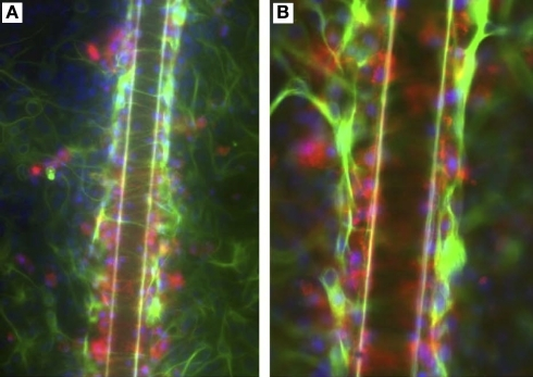 An in vitro model of glial scarring developed by Polikov and colleagues (Polikov et al. , 2006, 2009) using an optimized cell culture monolayer of primary astrocytes and microglia. (A) Upon implantation of a 50-μm metallic wire into this culture, distinct traits of glial scarring are observed, such as microglial (red) activation and attachment to the implanted microwires, astrocyte (green) activation beyond the microglial layer in the form of GFAP up-regulation and encapsulation of wires by reactive astrocytes. (B) Shows the scar phenomena at higher magnification. Reprinted from Polikov et al. (2006). Copyright 2006, with permission from Elsevier.