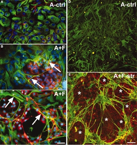 "Co-culturing meningeal fibroblasts along with astrocytes in vitro can cause astrocyte reactivity and increased GFAP expression similar to in vivo glial scarring [157]. (A) Astrocytes (A-ctrl) in 2-D culture show perinuclear GFAP reactivity and are flat, round, or oval-shaped cells. (B) Long-term astrocyte–fibroblast co-cultures (A + F) show spindle-shaped astrocytes with elongated processes surrounded by meningeal fibroblasts. Also observed are astrocytic processes entering fibroblast territory (arrows) and brighter GFAP staining of astrocytes contacting fibroblasts. (C) Shows a 2-day mixed culture of astrocytes and fibroblasts showing strongly GFAP+ astrocytes (arrows) on and around patches of fibroblasts. (D) Shows differentiated astrocytes on collagen-coated silastic membranes without the presence of fibronectin+ cells. (E) Shows astrocyte–fibroblast co-culture 3 days following fibroblast addition and 24 h stretching (A + F-str) show disruption of processes, with clusters of star shaped astrocytes forming ""bridges"" of bundled processes across spaces shown as asterisks. Increased GFAP signals are found accumulated in stellate processes that are fibronectin+ (yellow). Fibronectin-positive fibroblasts (asterisks) remain evenly distributed after stretching. Bar = 20 μm. In (A–E), GFAP: green; fibronectin: red; nuclei: blue). Reprinted from Wanner et al. (2008). Copyright 2008 Wiley-Liss Inc. Reproduced with permission."