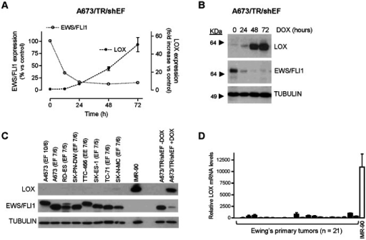 LOX mRNA and protein are downregulated by EWS/FLI1 in the A673 Ewing sarcoma cell line.A) A673/TR/shEF cells were stimulated by different periods of time with doxycycline (DOX, 1 µg/ml) to induce the expression of an EWS/FLI1-specific shRNA. The levels of LOX, EWS/FLI1 and TBP (reference gene) mRNA were quantified by multiplex real time qRT-PCR. For each time point, LOX and EWS/FLI1 mRNA levels were normalized to that of TBP and referred to unstimulated cells. The figure shows the data (mean±SD) of one out of two independent experiments done in triplicate with equivalent results. B) LOX protein levels were also determined by western-blot in the A673/TR/shEF cells stimulated with doxycycline. The same blot was stripped and successively incubated with anti-FLI1 antibody to assess the expression of EWS/FLI1 and with anti-α-tubulin as a control for loading and transferring. LOX mRNA and protein levels were strongly downregulated by EWS/FLI1. C) LOX protein levels were determined by western-blot in 8 Ewing derived cell lines and in normal fibroblasts IMR-90, used here as a positive control of LOX expression. A673/TR/shEF cells stimulated with doxycycline for 48 hours were also included. The type of EWS/FLI1 (EF; EWS exon/FLI1 exon) and EWS/ERG fusion (EE; EWS exon/ERG exon) present in each Ewing cell line are indicated. LOX protein expression was nearly undetectable in Ewing derived cell lines. D) LOX mRNA levels were quantified by qRT-PCR in a set of Ewing's primary tumors (n = 21). Normal fibroblasts IMR-90 are used as a positive control. mRNA levels were normalized to that of TBP (mean±SD). LOX mRNA levels observed in Ewing tumors were very low compared to those observed in the control fibroblast cell line IMR-90.