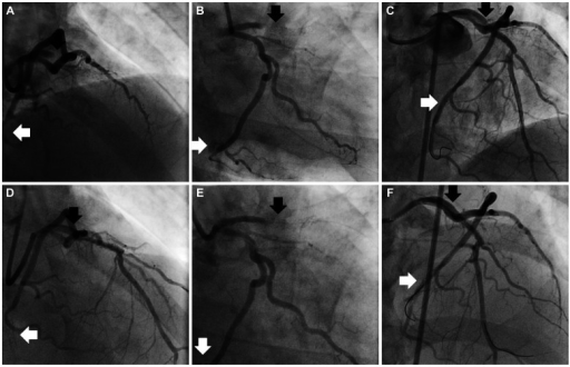 At the third admission, both mid portion of the left anterior descending artery (m-LAD) (black arrow) and distal portion of left circumflex artery (d-LCx) (white arrow) stents were totally obstructed with thrombi (A and B). After the procedure, revascularization flow was recovered at both stent areas (C). In re-stent thrombosis event at the third admission, there were no flows at both stent areas in the emergency angiography (D and E). After balloon dilation on m-LAD and d-LCx stents, suboptimal revascularization flows were observed at both stents (F).