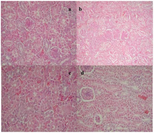(a) Edema of the renal proximal tubule cells with partial tubule lumen stenosis, dystrophic changes with the appearance of apoptotic bodies, E-II group; (b) Proliferation of mesangial cells and capillary endothelial cells in the glomeruli, E-II group; (c) Regenerative changes in the tubulocytes, E-I group after the withdrawal period; (d) Regenerative changes in the tubulocytes and sclerotic changes in the glomeruli, E-I group after the withdrawal period.