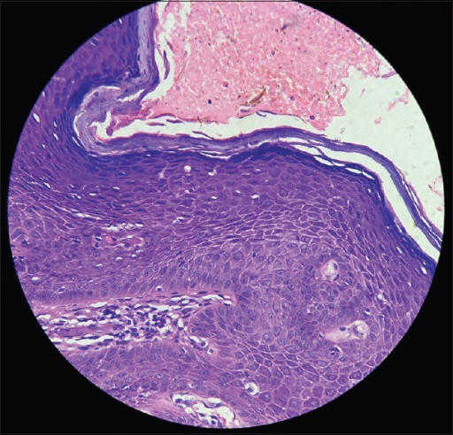 Histopathology (high power view)