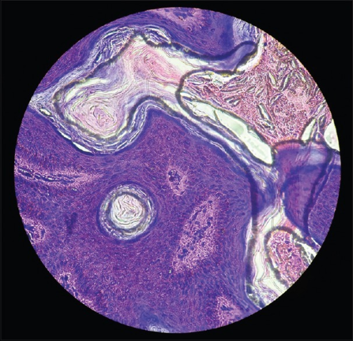 Histopathology (high power)-horn cyst