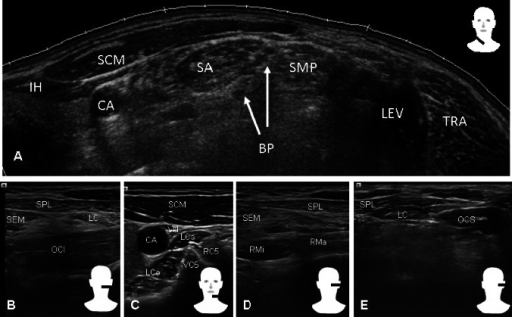 Sonographic appearance of frequently injected muscles (mainly a, b) and more difficult accessible, small, or deeper located muscles (mainly c, d, e). Muscles: IH infrahyoid, SCM sternocleidomastoideus, SA scalenus anterior, SMP scalenus medius posterior, LEV levator scapulae, TRA trapezius, SEM semispinalis capitis, SPL splenius capitis, OCI obliquus capitis inferior, LC longissimus capitis, LCo longus colli, LCa longus capitis, RMi rectus capitis posterior minor, RMa rectus capitis posterior major, and OCS obliquus capitis superior. Others are CA carotid artery, BP brachial plexus, VC5 vertebra C5, RC5 root C5, and VN vagus nerve