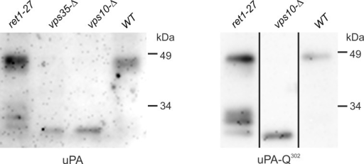 Immunoblot analysis of uPA from culture supernatants.uPA, the strains 64MA70UAL (ret1-27), 64MA70UA-RET (WT), 64MA70U-RET-Δvps10 (vps10-Δ), and 64MA70U-RET-Δvps35 (vps35-Δ), expressing the wild-type uPA; uPA-Q302, the strains 64MA70QAL (ret1-27), 64MA70QA-RET (WT), and 64MA70Q-RET-Δvps10 (vps10-Δ), expressing the unglycosylated uPA-Q302 mutant protein. Samples with the wild-type uPA were treated with EndoH prior to electrophoresis.