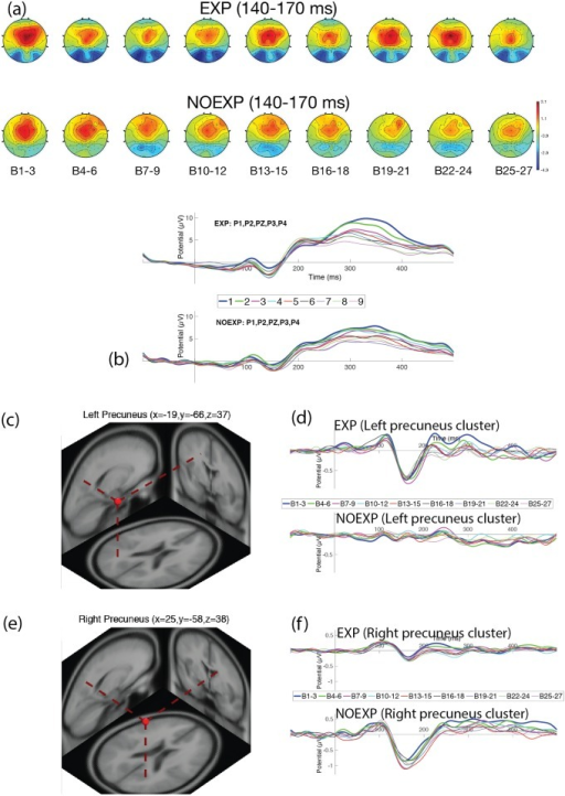 Neural activity for late N1 over parietal region.(a) Head maps for 9 periods of time during late N1 (140–170 msec). (b) ERP graph over parietal electrodes (P1, P2, P3, P4). (c) Dipole localization for late N1 component over left precuneus region. (d) ERP for left precuneus cluster. (e) Dipole localization for late N1 component over right precuneus region. (f) ERP for right precuneus cluster.