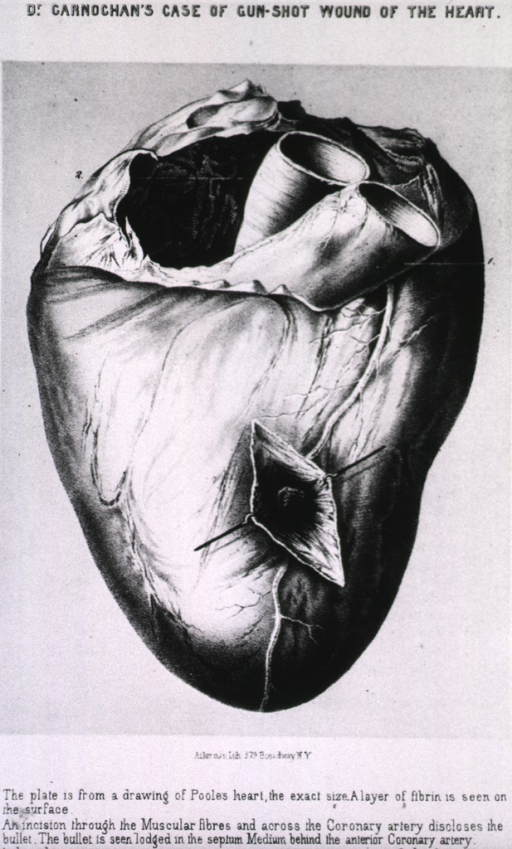 <p>Heart showing gun-shot wound; case in which patient lived eleven days.</p>