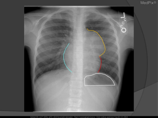 A mass obscures the ascending thoracic aorta and upper left heart border (yellow line) on the PA view, placing it in the anterior mediastinum.  The lateral view confirms this.  No calcifications are visible.