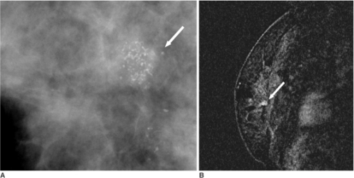 A 43-year-old woman with a 2 cm high grade, comedo type DCIS, which was more accurately assessed by mammography than by MRI.A. Spot-magnification mediolateral oblique mammogram shows a 1.4 cm segmental distribution of the pleomorphic microcalcifications (arrow) in the right breast.B. Dynamic contrast-enhanced sagittal subtraction MR image shows a 0.5 cm sized, irregular enhancing lesion (arrow) in the right breast.