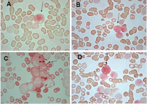 Representative ICC for JNK (A), pErk-1 (B), Gadd45a (C) and Caspase8 (D). (A) JNK nuclear immune-reactivity in positive bone marrow blasts. (B, C) pErk-1 and Gadd45a nuclear and cytoplasmic staining in blasts. (D) Caspase8 cytoplasmic immune-staining in bone marrow blasts. Arrows show positive red stained cells.