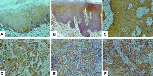 Immunohistochemistry analyses of Hsp27 expression on normal tongue, dysplastic lesions, primary oral tongue squamous cell carcinoma (OTSCC) and lymph node metastasis tissue samples. Immunohistochemistry analyses for Hsp27 were performed as described in Material and Methods on A: normal tongue mucosa (n = 15), B: dysplastic lesions (n = 31), C: well differentiated primary OTSCC (n = 46), D: moderately differentiated primary OTSCC (n = 20), E: poorly differentiated primary OTSCC (n = 14), and F: lymph node metastasis (n = 32). Representative Images (×200) were shown.