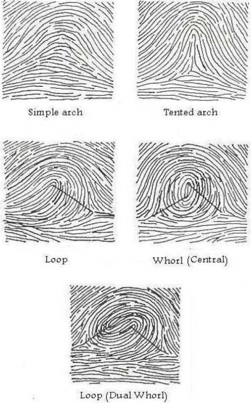 Ridge count of different finger patterns.  sc 1 st  Open-i & Ridge count of different finger patterns. | Open-i